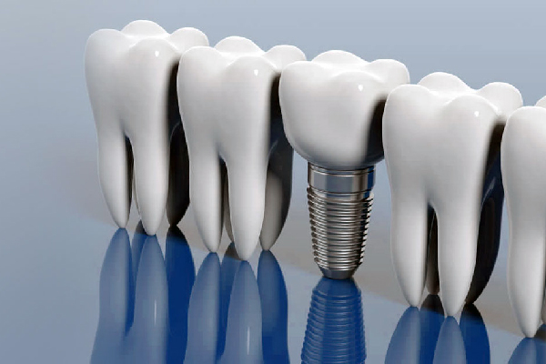 implant-slider