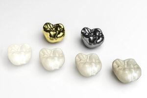 بهترین روکش دندان
