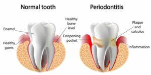 بیماری لثه و ایمپلنت دندان
