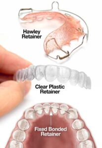 انواع ریتینرهای دندان