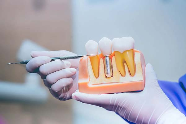 آمادگی قبل از ایمپلنت دندان