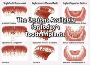 دندان های جایگزین برای ایمپلنت