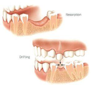 علت تحلیل لثه | bone resorption