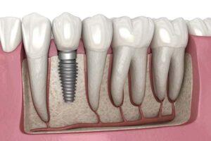 شل شدن ایمپلنت دندان