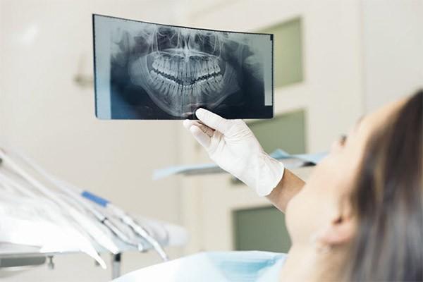 استخوان فک و ایمپلنت دندان