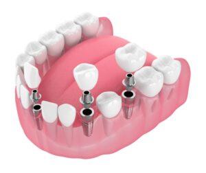 ایمپلنت دندان و تاثیر ان روی استخوان فک
