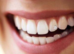 تتو دندان چیست