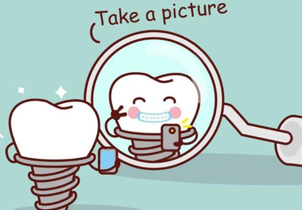 حقایقی در مورد ایمپلنت دندان