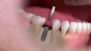 چرا جای ایمپلنت دندان درد می گیرد