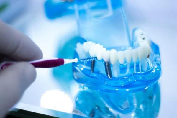 تمیز کردن ایمپلنت دندان