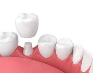 طول عمر روکش دندان