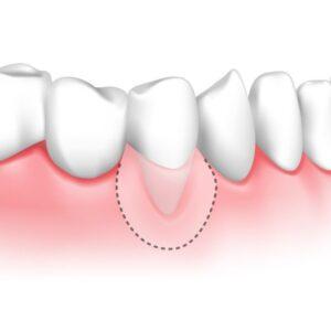 بیرون زدگی ریشه دندان