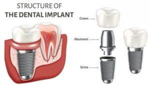 راحتی ایمپلنت دندان