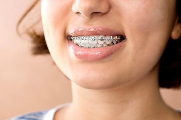 ارتودنسی کردن دندان